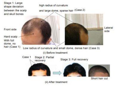 masaz-vlasove-pokozky-studie