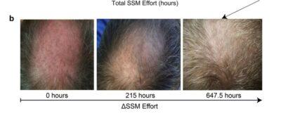 masaz-vlasove-pokozky-rust-vlasu